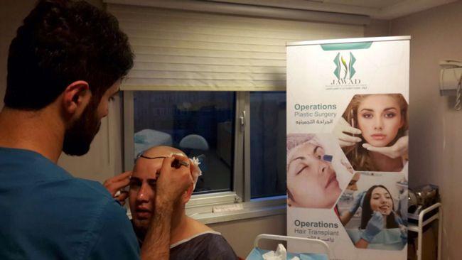 تحديد خطوط عملية زراعة الشعر في مركز جواد