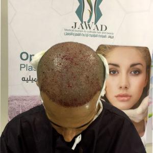 زراعة الشعر في تركيا