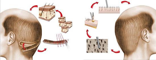 الفرق بين زراعة الشعر بتقنية الاقتطاف والطرق القديمة