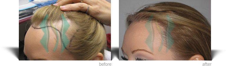 نتائج عملية زراعة الشعر في تركيا