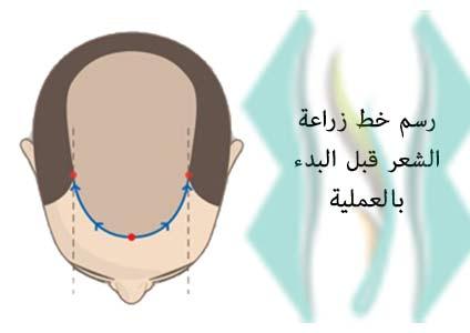 رسم خط زراعة الشعر قبل البدء بالعملية
