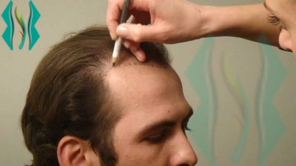 زراعة الشعر بتقنية الاقتطاف (اقتطاف بصيلات الشعر FUE)