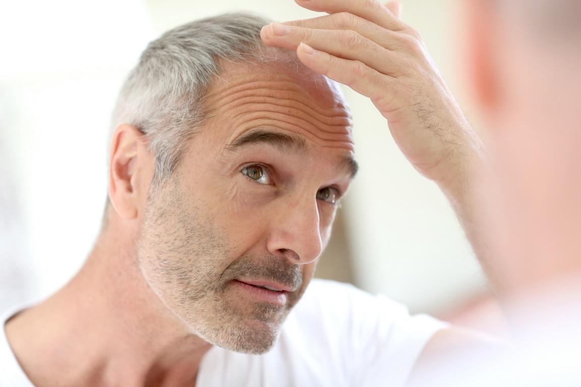 هل تقتصر زراعة الشعر على عمر معين ؟