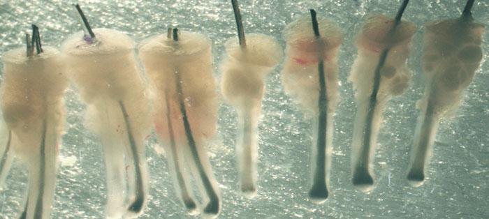 ما هو عدد البصيلات اللتي تحتاجها في عملية زراعة الشعر