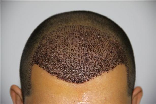 التهاب فروة الرأس بعد زراعة الشعر