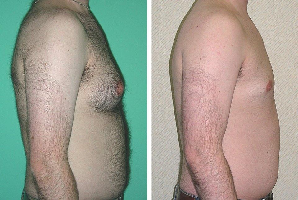 نتائج عملية تصغير صدر الرجل