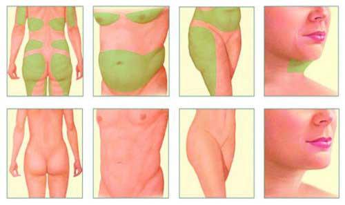 شفط الدهون بتقنية الفيزرهاي
