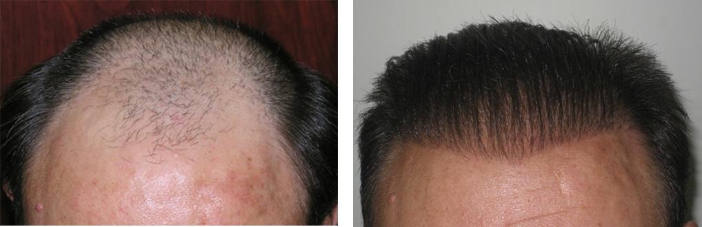 فوائد زراعة الشعر